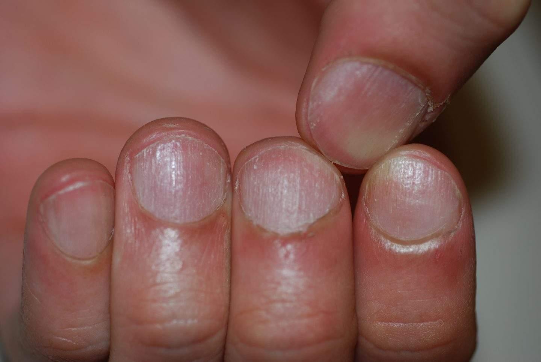 Alopecia areata delle unghie: trachionichia