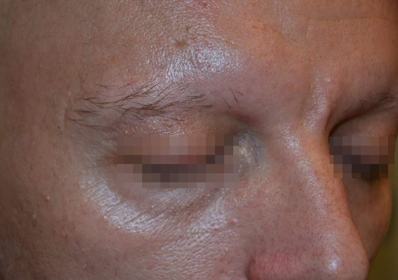 Alopecia areata parziale delle sopracciglia