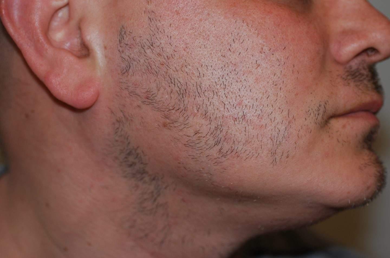Chiazze di alopecia areata della barba