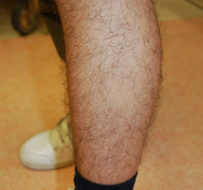 Una chiazza di alopecia areata dei peli della gamba