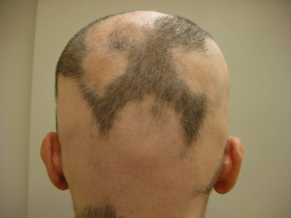 alopecia nei bambini di 8 anni