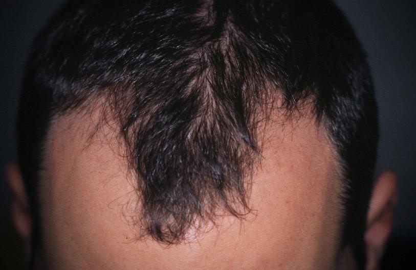Alopecia androgenetica maschile: la stempiatura è uno dei segni iniziali