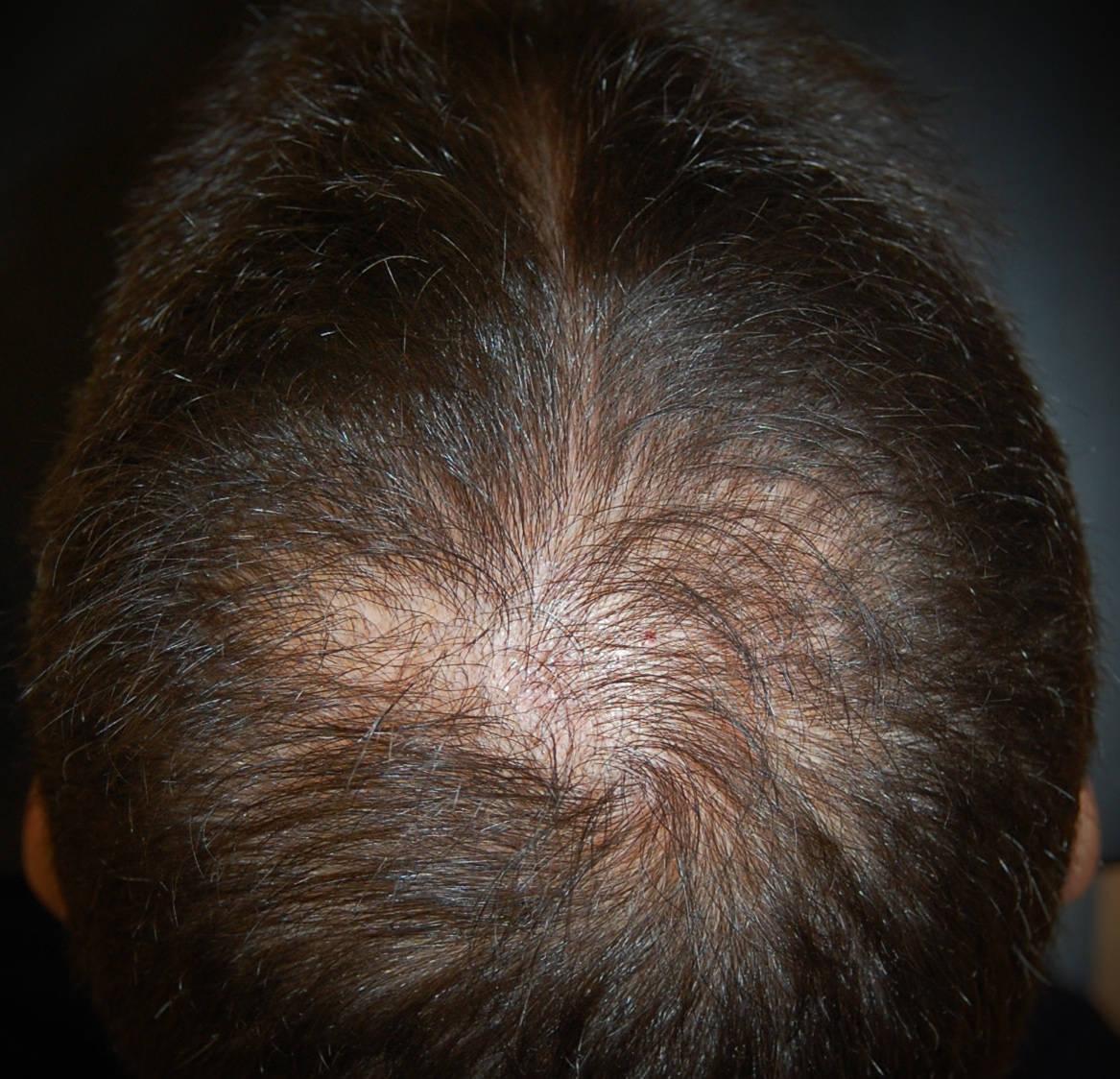 """Alopecia androgenetica maschile: l'assottigliamento dei capelli al vertice provoca la """"chierica"""""""