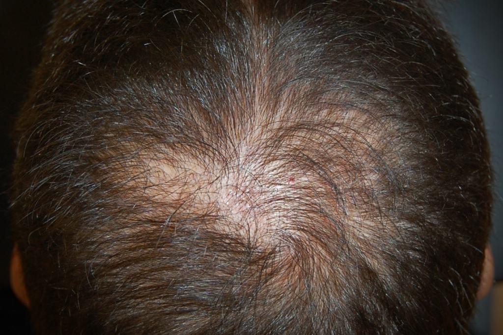 La caduta dei capelli nella donna 6b9bd06a6f65