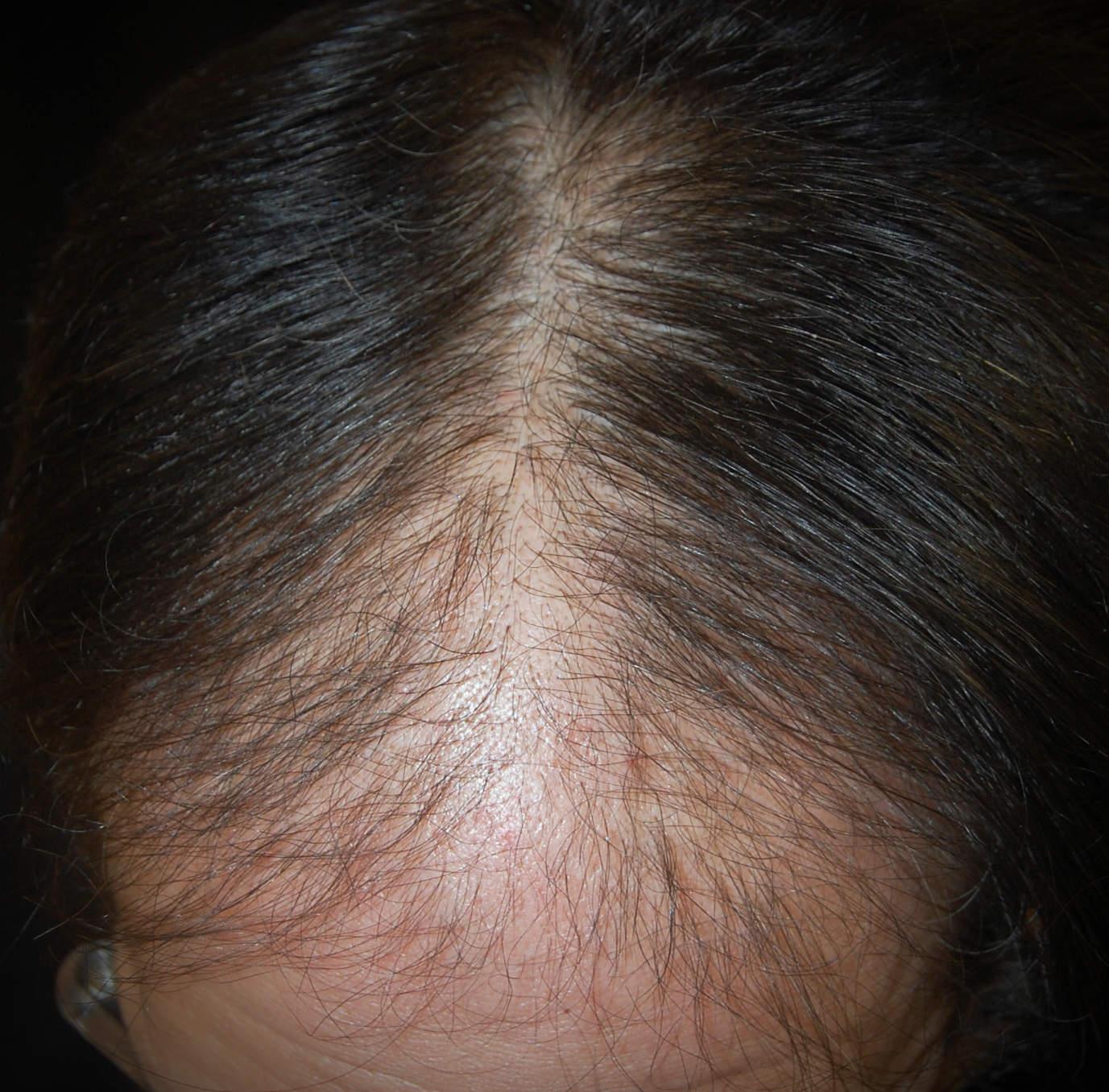 Alopecia androgenetica maschile: a volte è colpita la zona anteriore del capo, e il diradamento dei capelli permette di vedere la cute