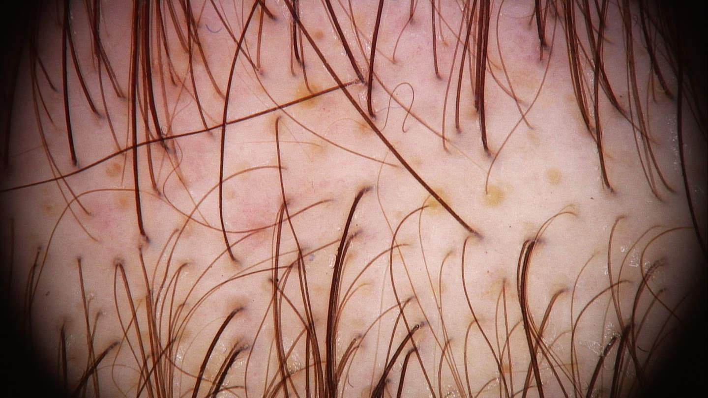 La dermoscopia nell'alopecia androgenetica