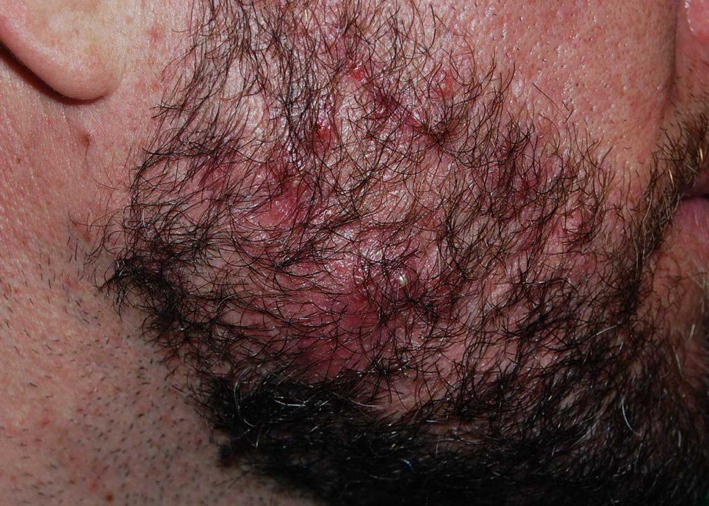 Altre malattie della barba: acne grave della barba