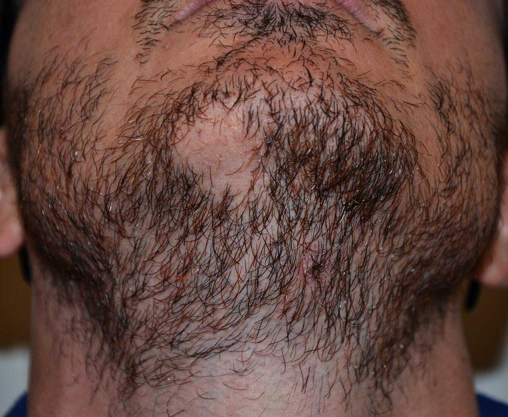 Alopecia areata della barba