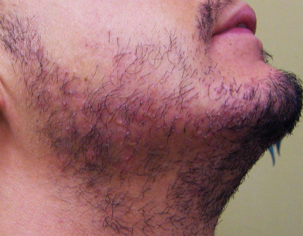 Follicoliti della barba