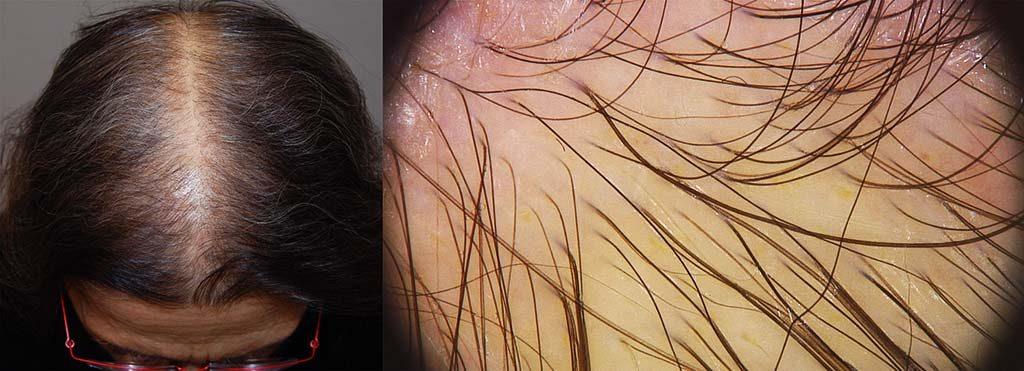 Alopecia diffusa