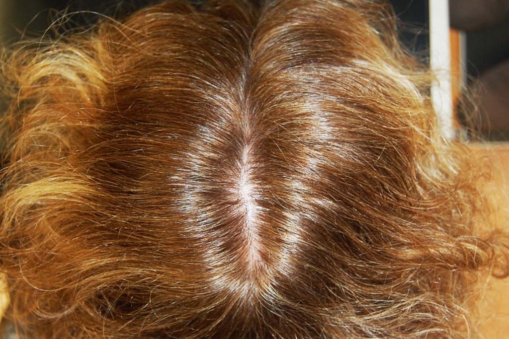 Preferenza La caduta dei capelli nella donna, telogen effluvium e alopecia  WS47