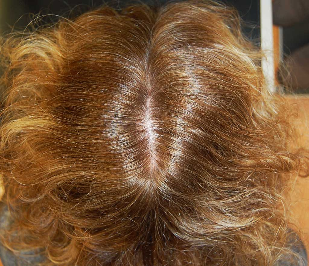 Donne capelli che cadono