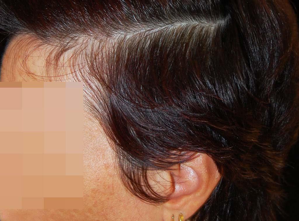 Perdita capelli donne malattia