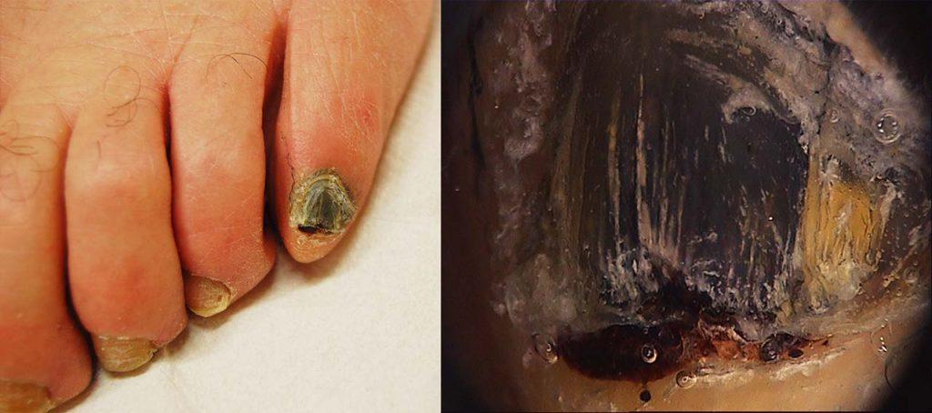 """Ematoma """"cronico"""": l'unghia del V dito del piede è completamente nera, anche sotto alla cuticola. La dermoscopia mostra lo stravaso ematico subungueale e permette le diagnosi di ematoma"""