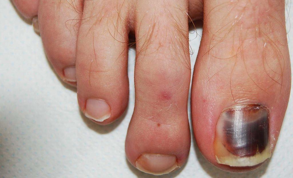 Ematoma subungueale acuto: colorazione rosso vino dell'unghia comparsa rapidamente dopo una partita di calcio, associata a intenso dolore