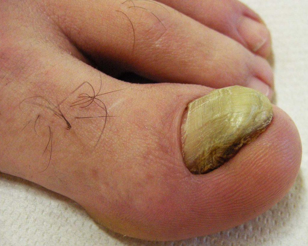 Onicogrifosi dell'alluce: l'unghia è ispessita ad artiglio, opaca, giallastra e difficile da tagliare