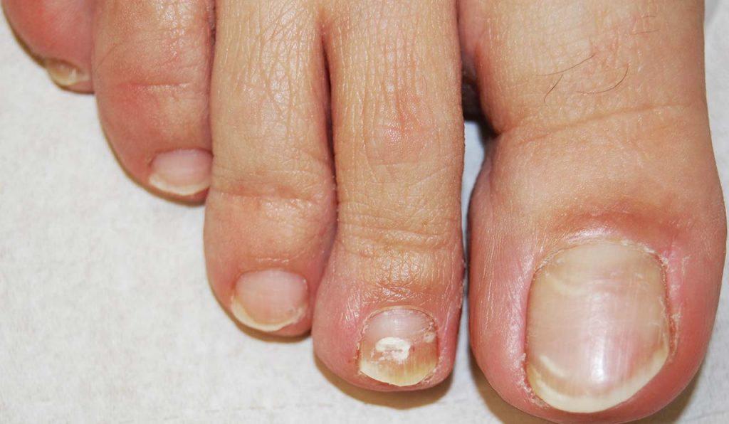 Malattie delle unghie dei piedi: Onicomicosi bianca superficiale del 2° dito del piede: chiazzette bianche opache sulla superficie della lamina