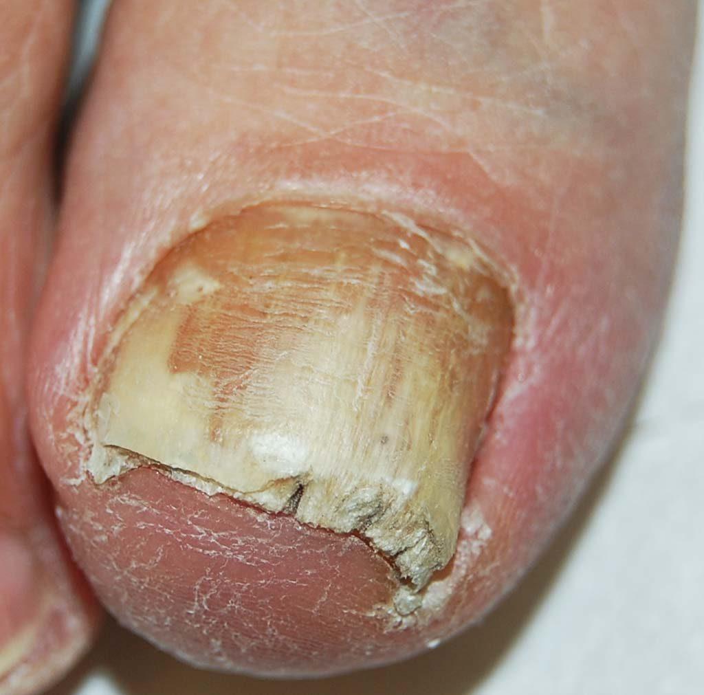Onicomicosi subungueale distale: l' unghia ha una colorazione bianco-giallastra, dovuta alla presenza di squame e miceti al di sotto della lamina scollata