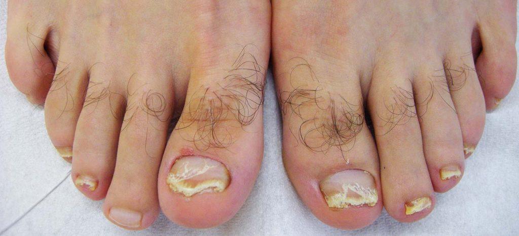 Psoriasi delle unghie dei piedi: le unghie sono staccate e sollevate da squame e il margine dell'onicolisi ha un tipico bordo rosa salmone. Da notare l'associata fragilità di superficie della lamina