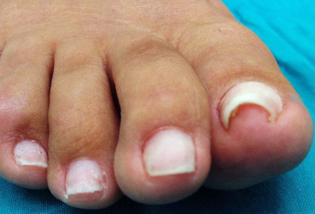 Unghia a pinza: restringimento verso il centro dei margini laterale dell'unghia dell'alluce con 'pinzettamento' doloroso dei tessuti molli