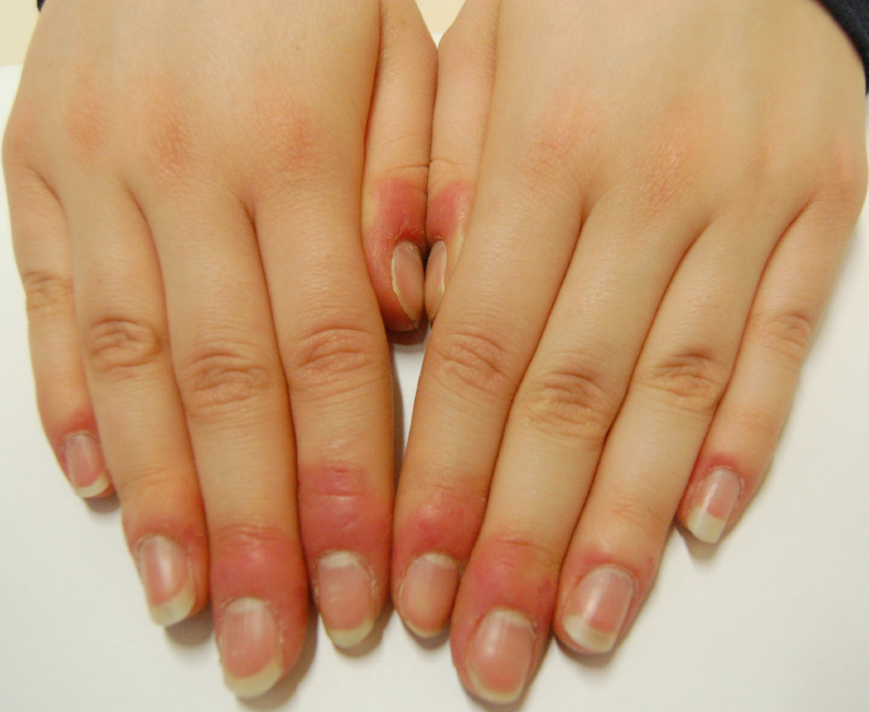 Risultati immagini per dermatite allergica professionale unghie